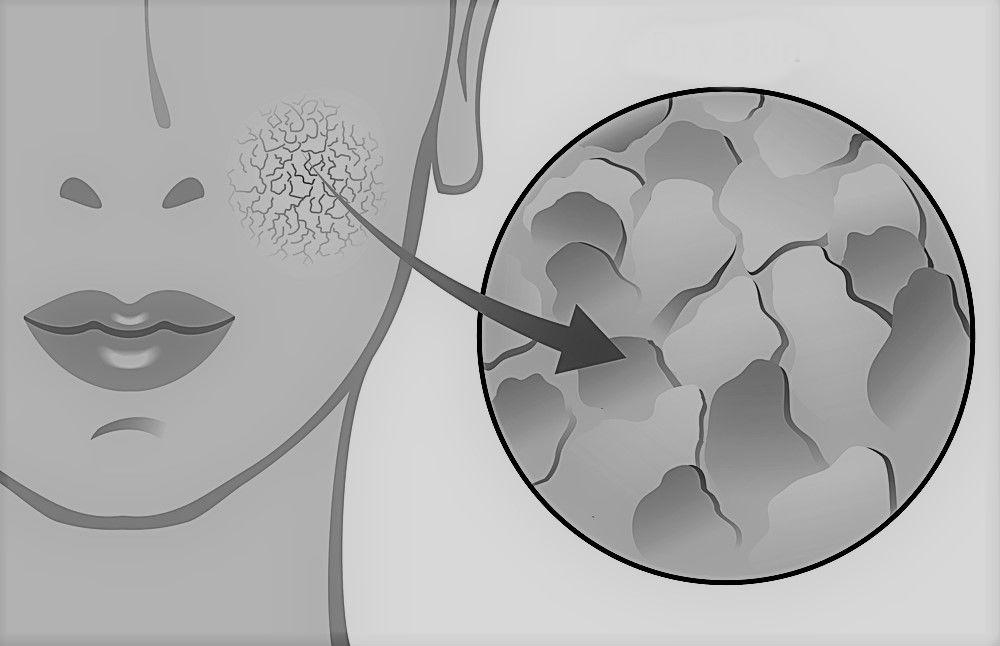 Exfoliate dead skin cells