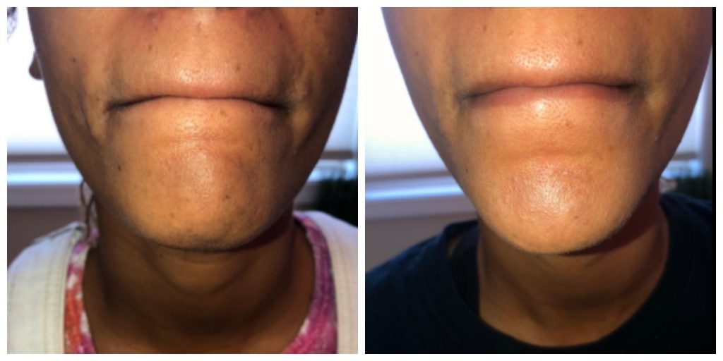 Discoloration on chin area
