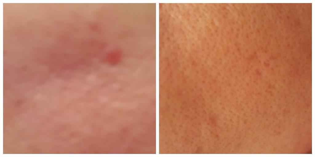 smaller pores, blackhead and whitehead removal