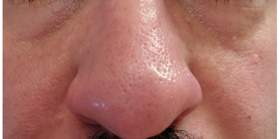 PMD for shrinking enlarged pores