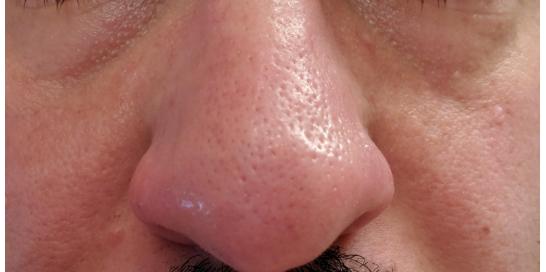 microderm glo mini blackhead extraction