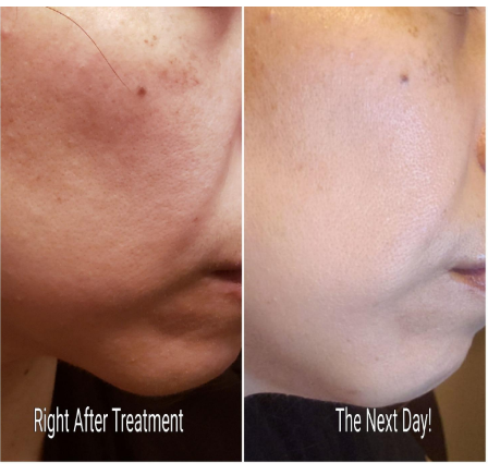 skin rejuvenation after a microderm glo mini session