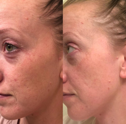 PMD for treating uneven skin tone