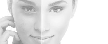 advantages of microdermabrasion