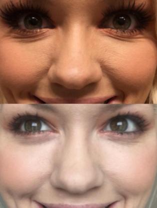 skin tone and texture improvement